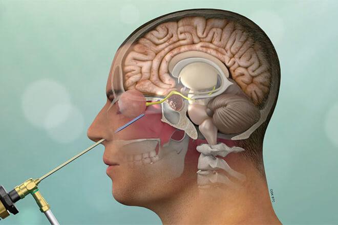 operacija hipofize