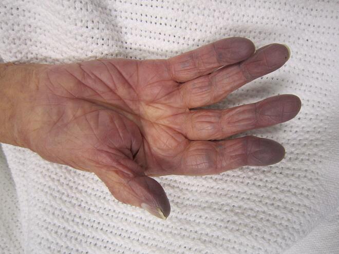Methemoglobinemija simptomi