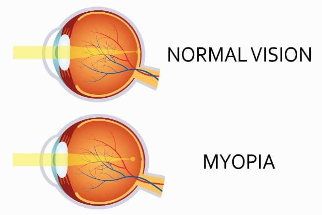 Uzroci-miopije