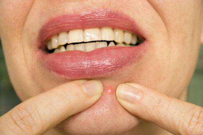 akne na bradi uzrok