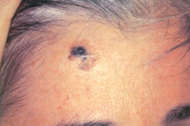 dezmoplasticni melanom