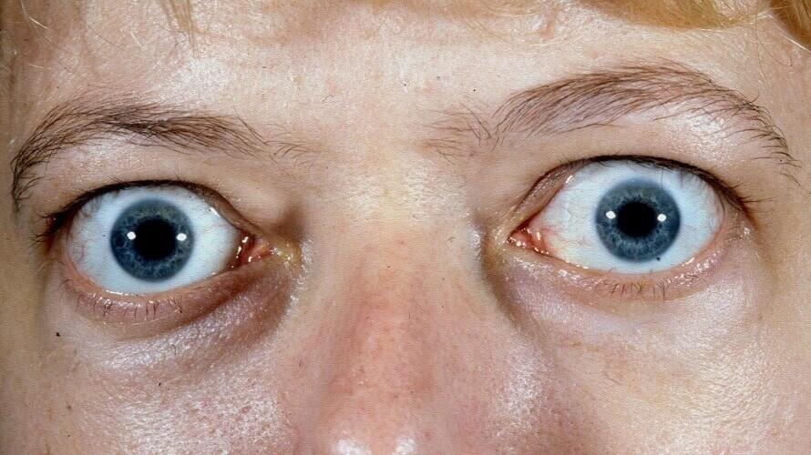 gravesova-oftalmopatija