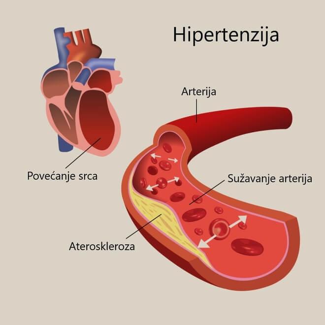 hipertenzija srca