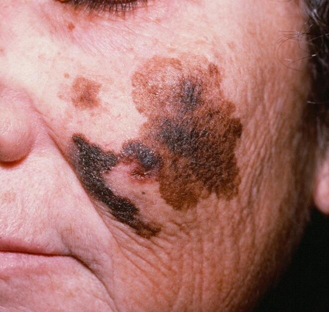 lentigo maligni melanom