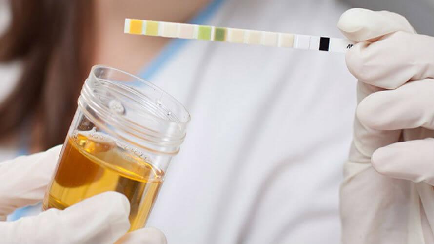 Mjerenje ketona u mokraći