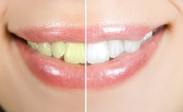 pjeskarenje zubi