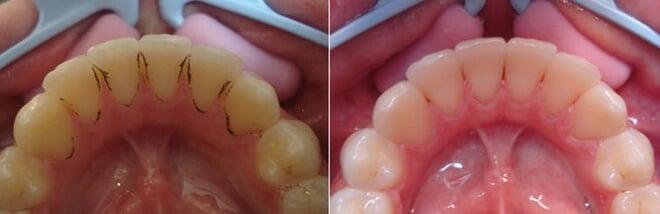 pjeskarenje zubi prije i poslije