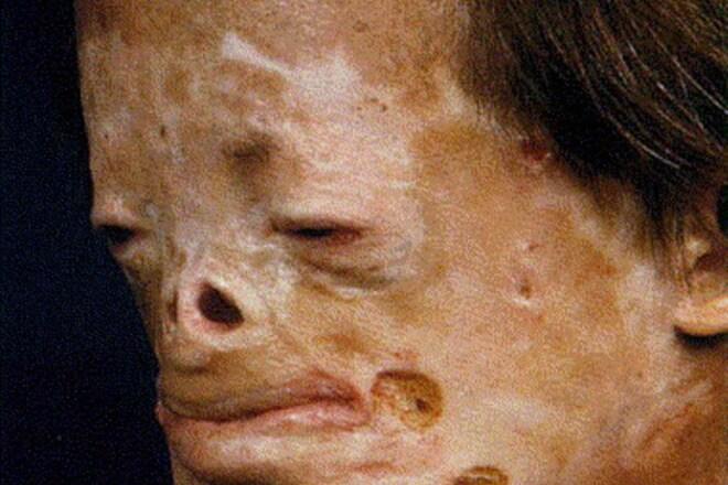 porfirija bolest