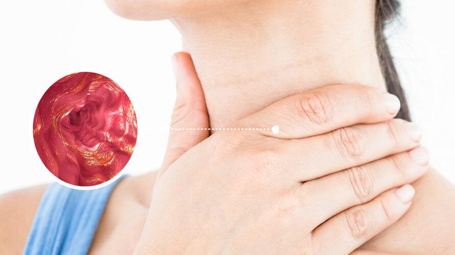 Upala jednjaka ili ezofagitis