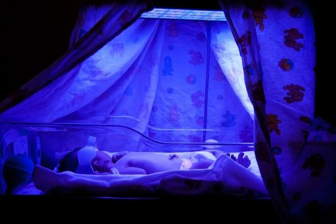 žutica kod novorođenčadi liječenje