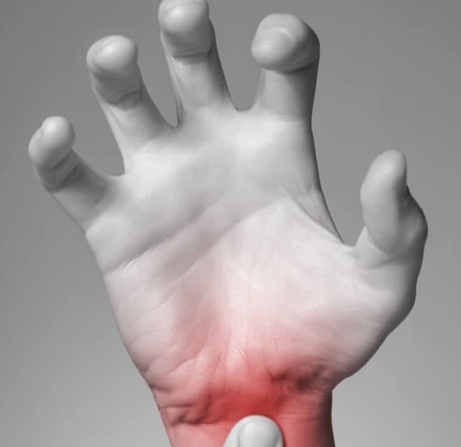 Bolovi-u-rukama