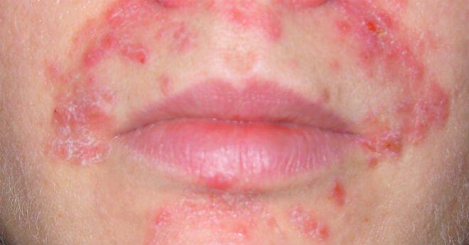 Dermatitis herpetiformis slike