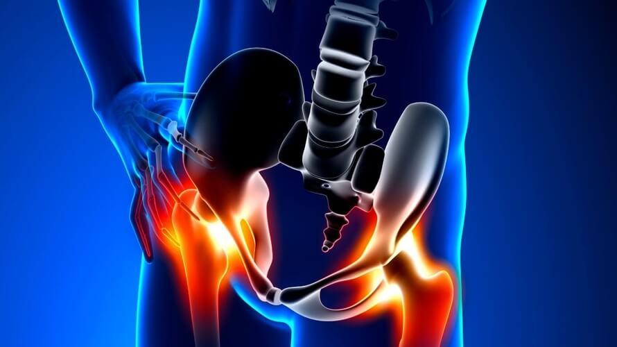 artroza kuka