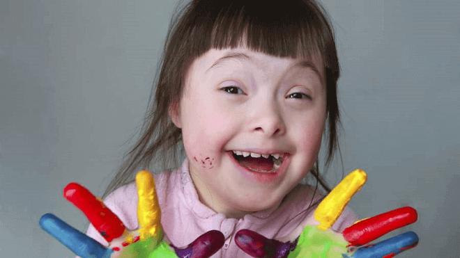 djevojcica-sa-downovim-sindromom
