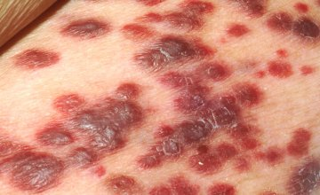 Kaposis sarcoma