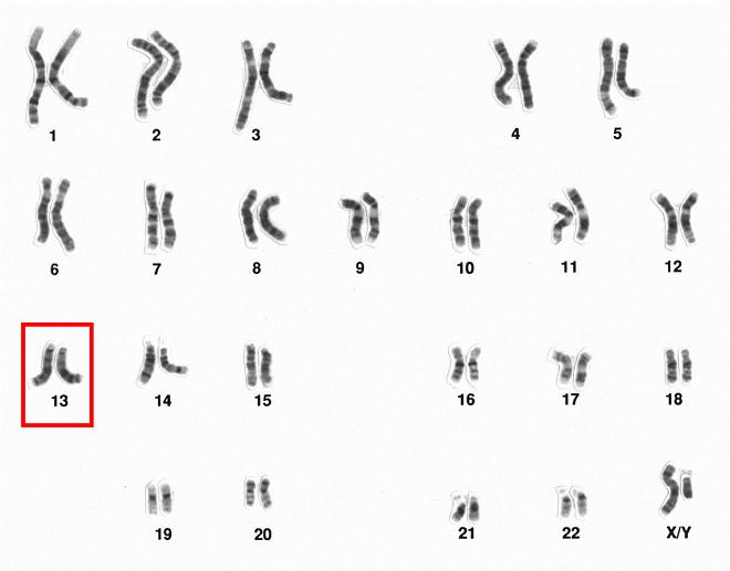 kromosomi