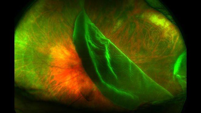 Oštećena mrežnica oka