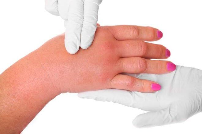 Oticanje prstiju na rukama