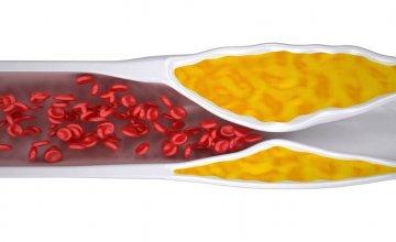 Začepljenje krvnih žila