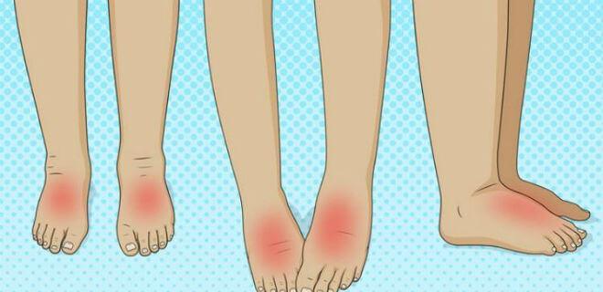 otečena stopala