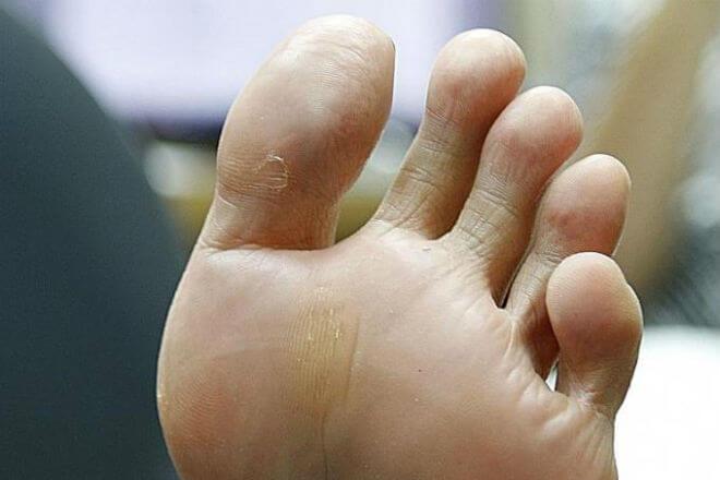 smrad stopala