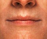 Trnjenje usana