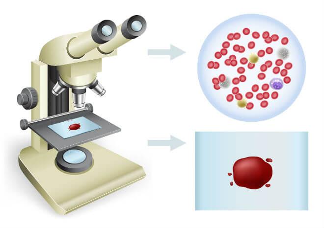 krv pod mikroskopom