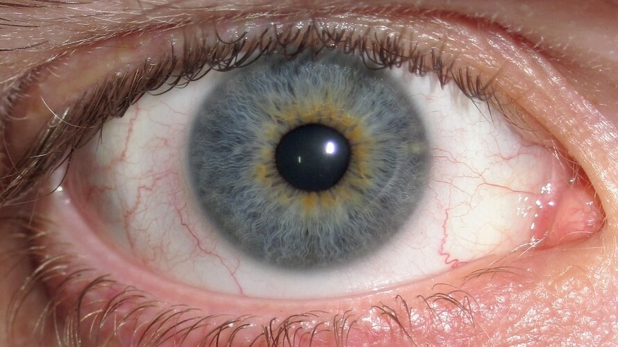 iridociklitis