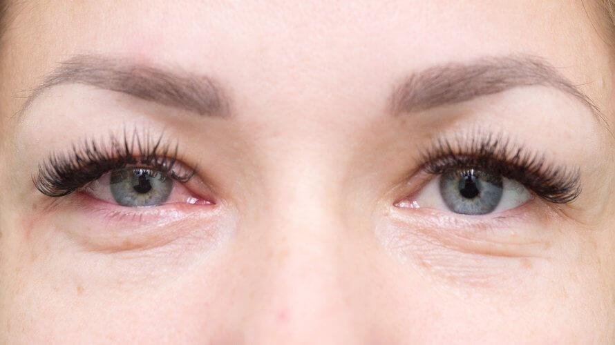 Očni tlak prirodno liječenje