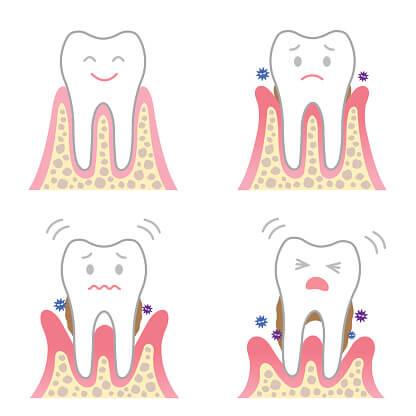 tretman-gingivitisa