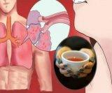 Čišćenje pluća