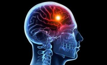 Ciste mozga