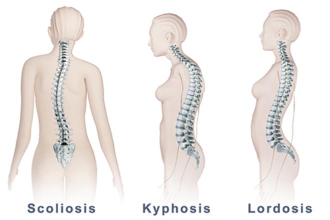 Deformacije kralježnice