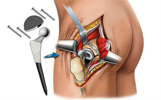 operacija kuka postupak