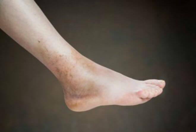 Pušačka noga