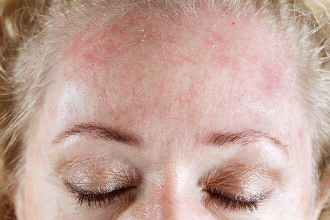 suha koža lica