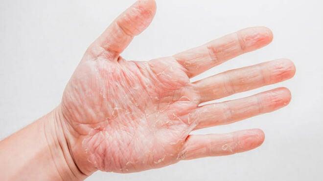 suha koža ruku