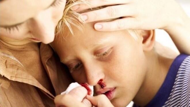 Krvarenje-iz-nosa-kod-djece