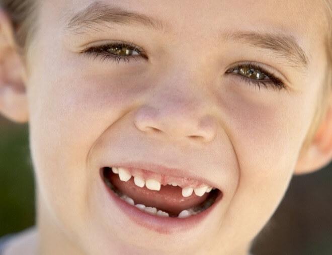 Mliječni-zubi-ispadanje