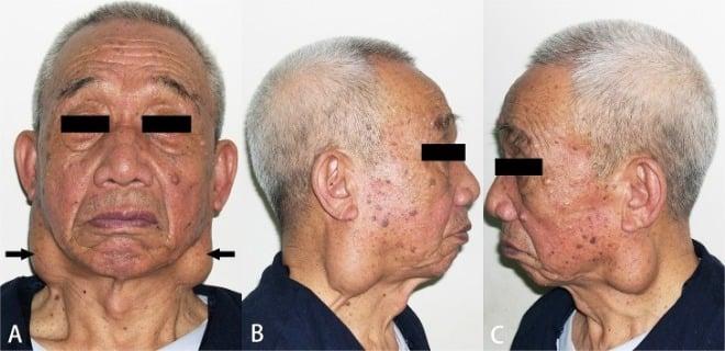 Warthin-tumor