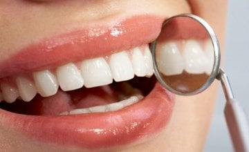 aktivni ugljen za zube