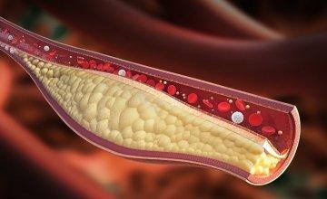 Masnoća-u-krvi
