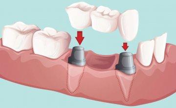Zubni mostovi
