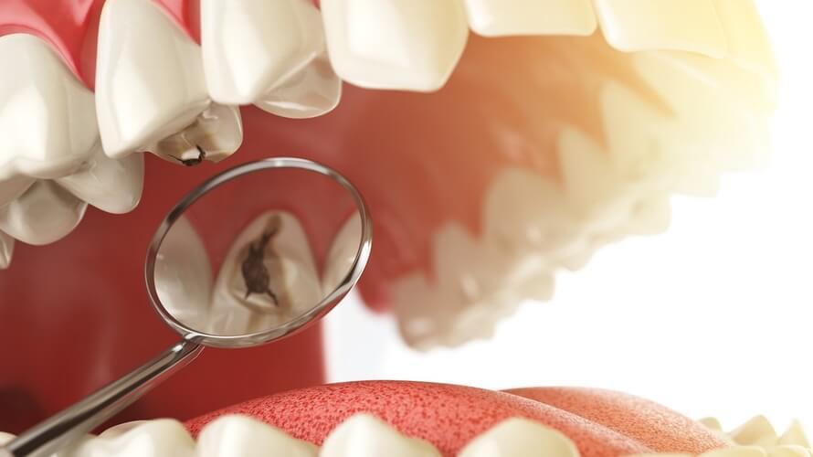 Karijes na zubima
