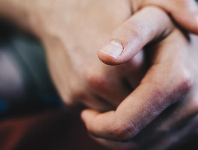 Tumor nokta