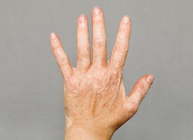 Vitiligo ruke