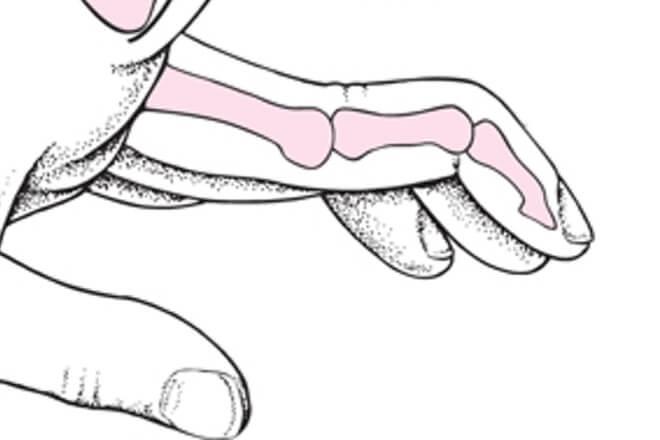 deformitet labudi vrat