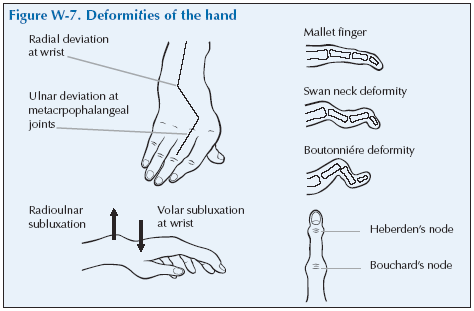 deformiteti ruke