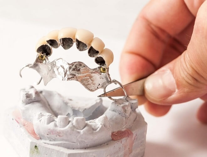 Metalokeramički most za zube