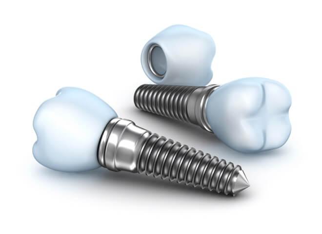 Zubni vijak